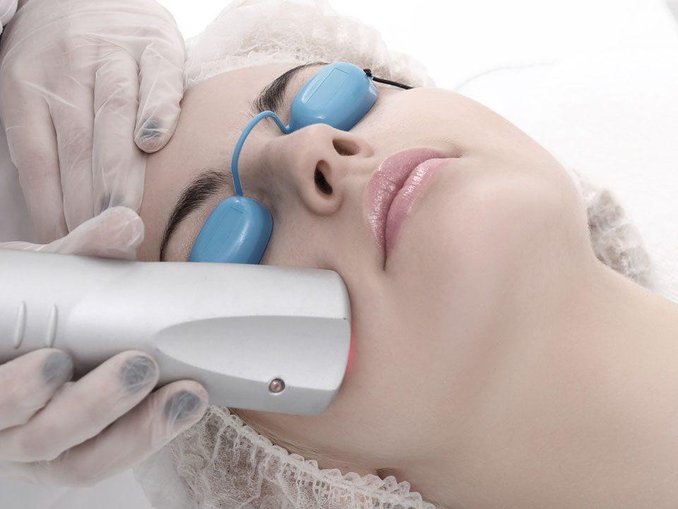 Club Laser - Rejuvenescimento Facial em Goiânia